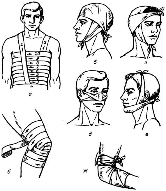 Повязки по хирургии картинки