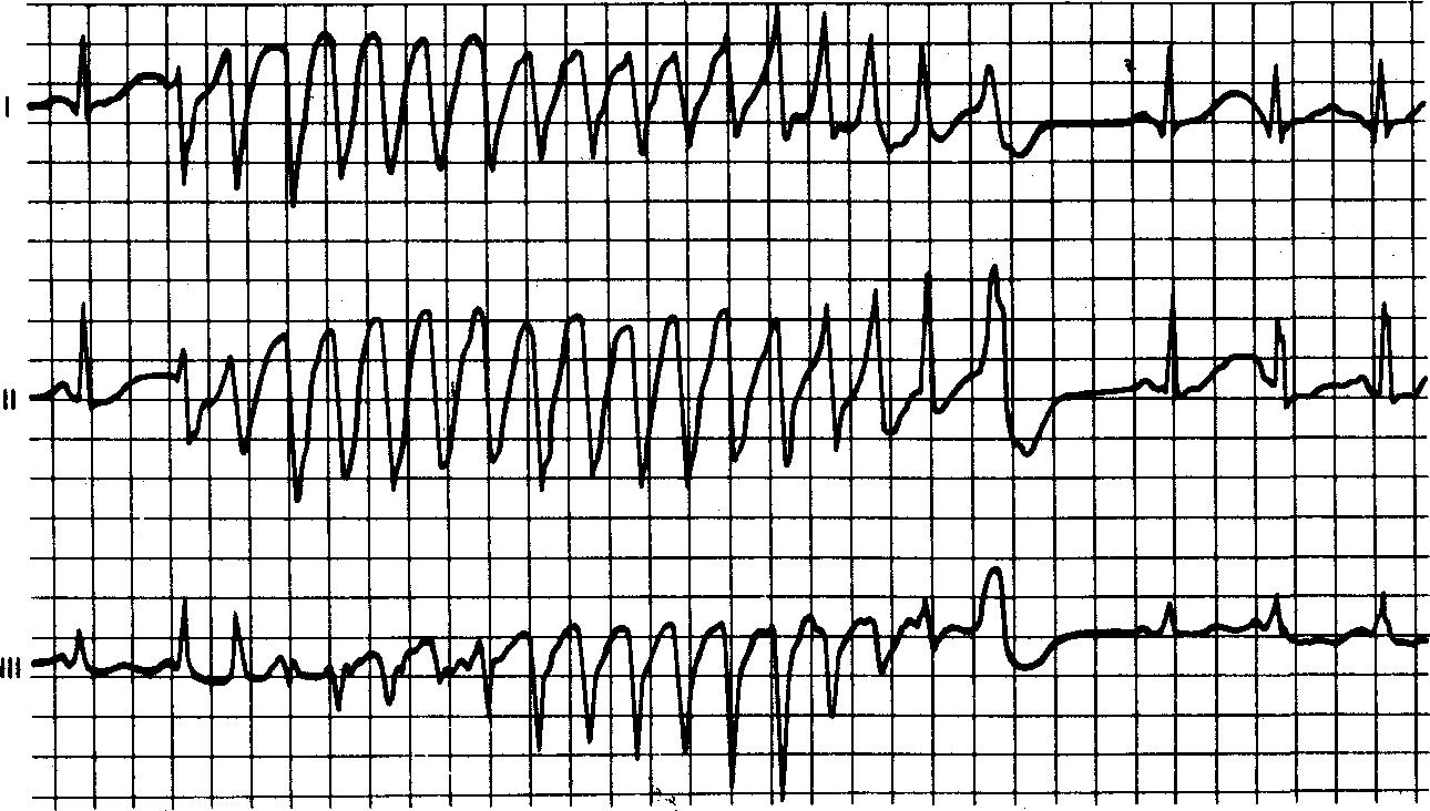 Экг при мерцательной аритмии в картинках