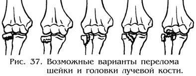 Изображение - Повреждения локтевого сустава травматология img-3b0pzY