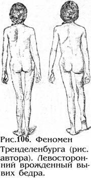 Вывих бедра симптомы диагностика и лечение вывиха бедра Профилактика