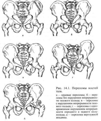 Перелом костей таза курсовая работа 1058