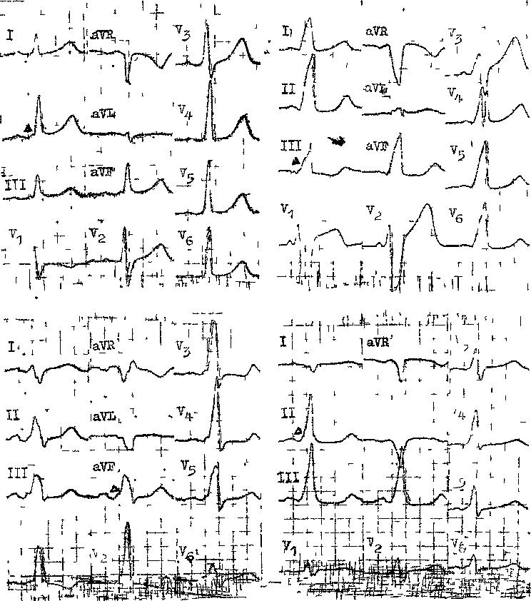 Феномен предвозбуждения желудочков сердца. Парциальный синдром предвозбуждения желудочков