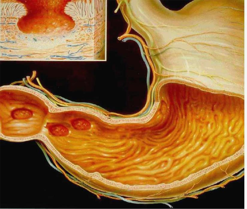 жилетка малигнизация язвы желудка картинки мотобур способен значительно