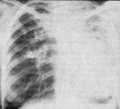 Лабораторные исследования при пневмонии