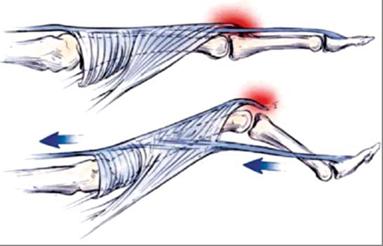 Ревматоидный артрит – симптомы, лечение и классификация