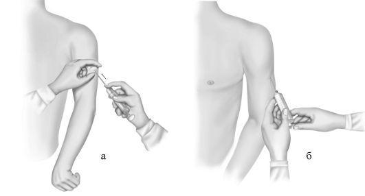Периферический венозный катетер