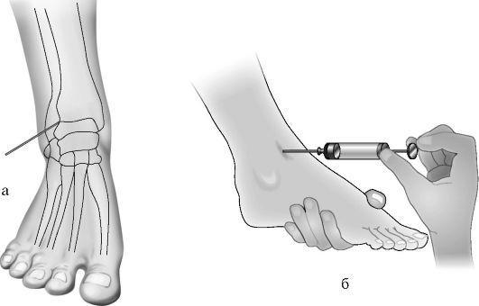 Пункция суставов скачать нсп артроз плечевого сустава нср