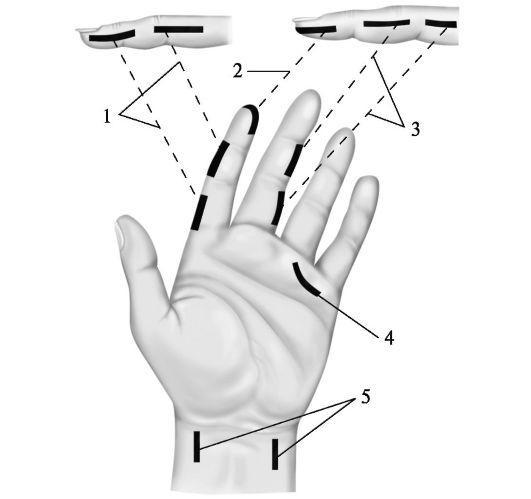 Операции при суставном панариции мази для суставов с гиалуроновой кислотой