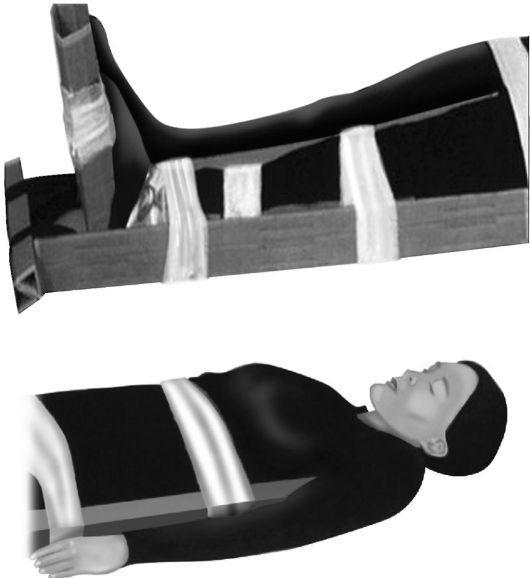 Транспортная иммобилизация при переломе позвоночника