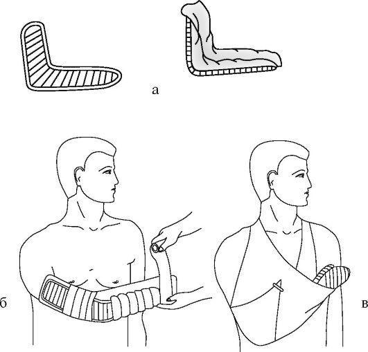 Техника наложения транспортных шин при повреждении лучезапястного сустава норбеков суставная гимнастика с