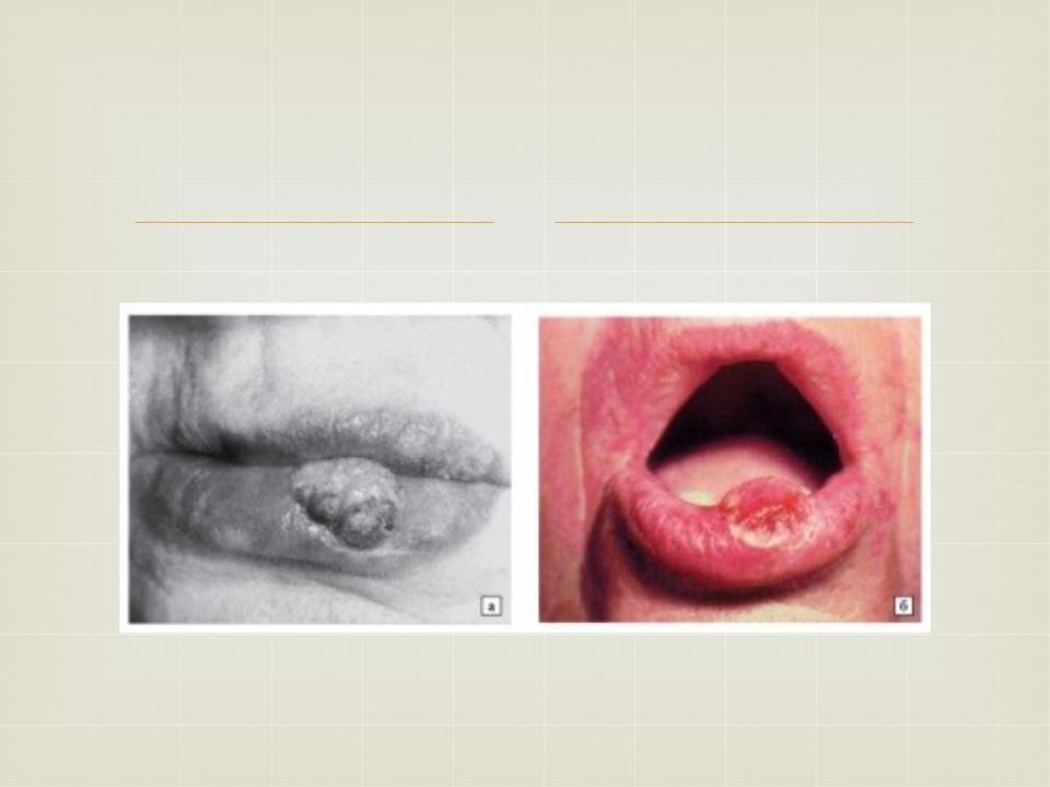 Реферат на тему рак нижней губы 5346