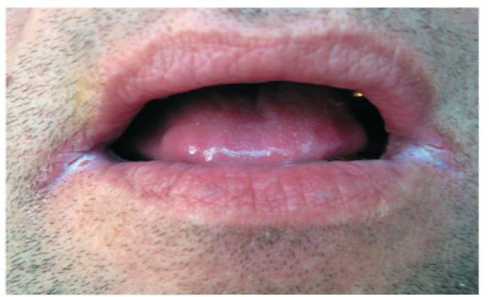Кандидозы полости рта реферат 3081