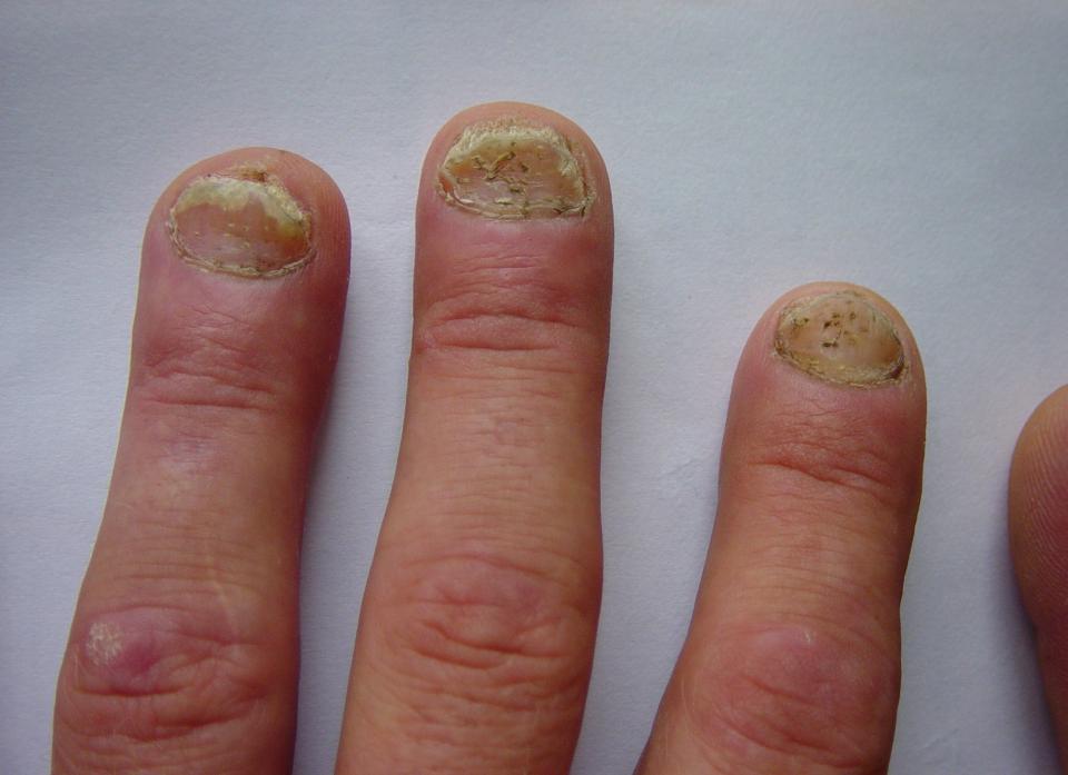 Диета При Ногтевом Псориаза. Диета при псориазе ногтей рук