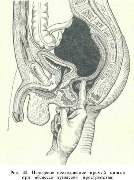 Анатомическая схема анального акта в разрезе, молодая блондинка онлайн порно видео