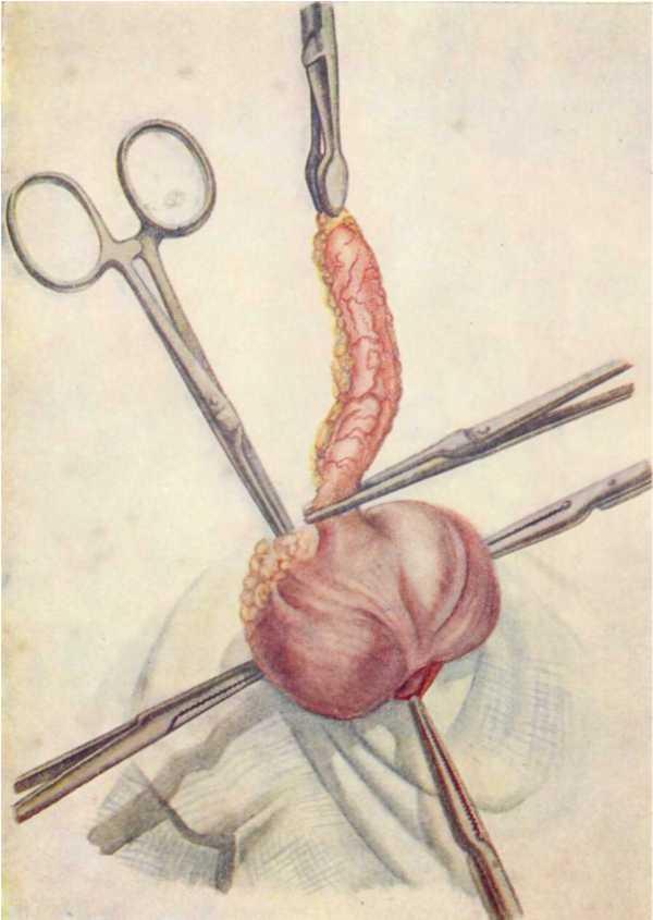 Операции аппендицит в картинках