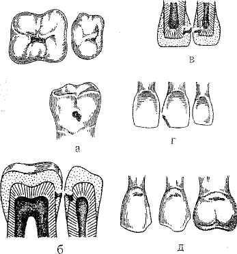 Алгоритм и основные этапы эндодонтического лечения зуба