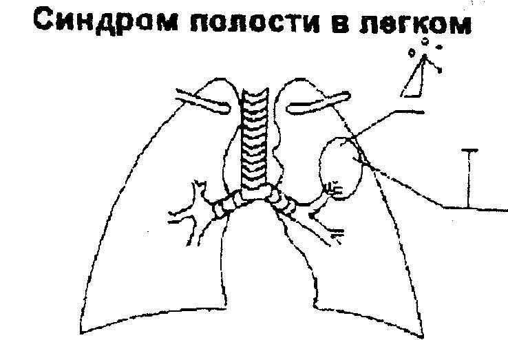 Синдром полости легкого соединенного с бронхом thumbnail