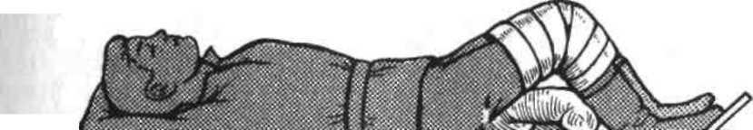 14.3. Оказание медицинской помощи пострадавшим с повреждениями ...