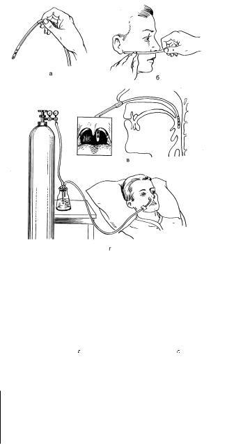 Оксигенотерапия в картинках