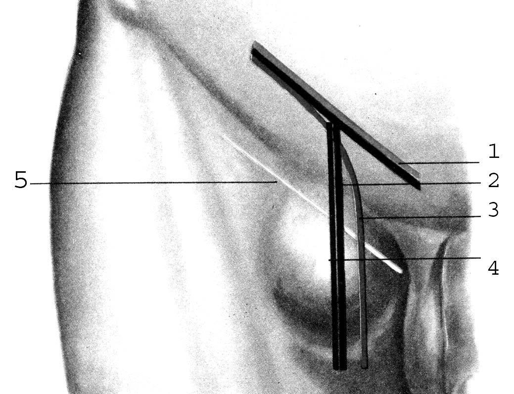 Пластика бедренного канала по бассини