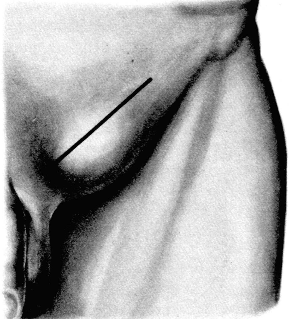 Укрепление брюшной стенки при грыже