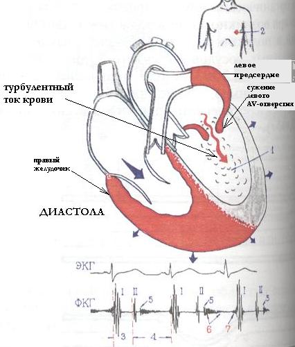Основные синдромы сердечной недостаточности