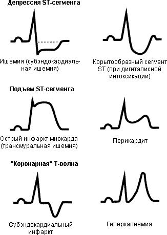 Формы (варианты) инфаркта миокарда.