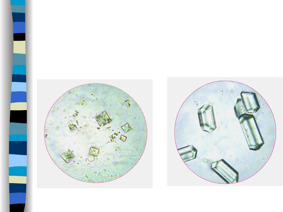 Осадок мочи под микроскопом в картинках
