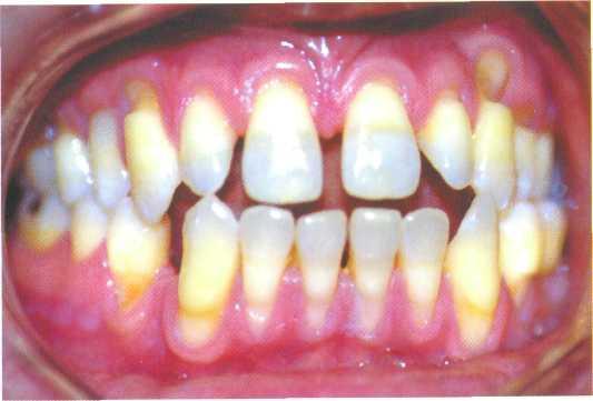 Клиновидный дефект зубов реферат 2863