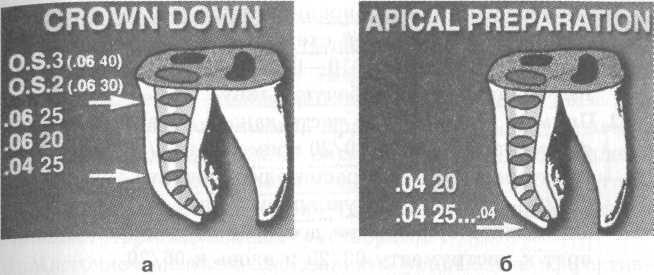 Инфицированный предентин со стенок канала зуба рекомендуют удалять