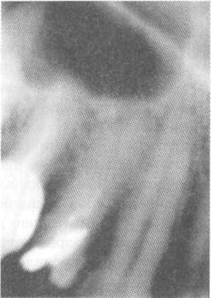 Классификация периодонтитов по МКБ: диагностика и лечение в клинике