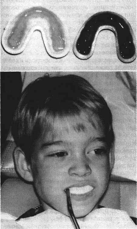 Показатели заболеваемости кариесом у детей