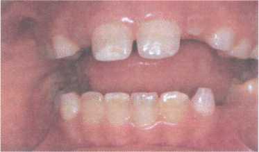 Лечения нарушения развития зубов thumbnail