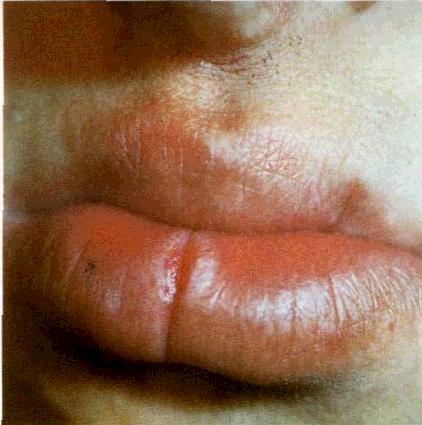 Трещина на верхней губе причины