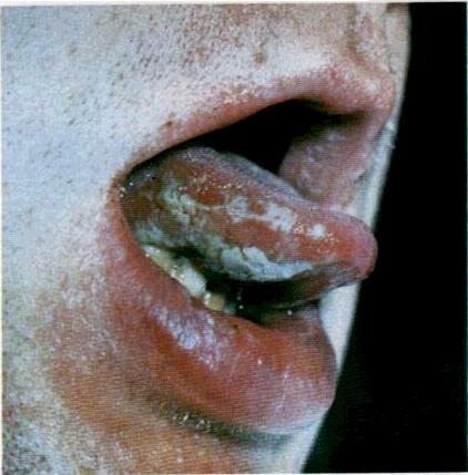 Секс товсті вагінальні губи фото