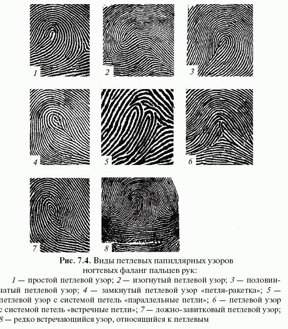 типы папиллярных узоров пальцев рук картинки рыбным молокам