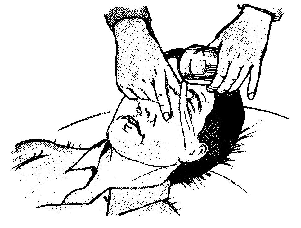 Промывание глаза в картинках