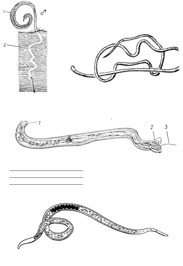 puternicloidoza hookworm ce este