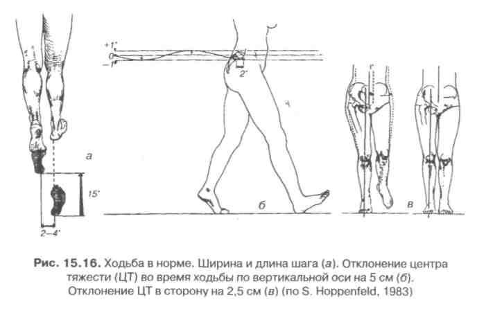 Описание позы положение звеньев тела в суставах замена двух тазобедренных суставов форум послеоперационный период