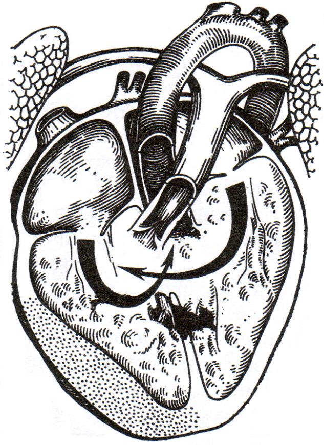 Хирургическая анатомия сердца