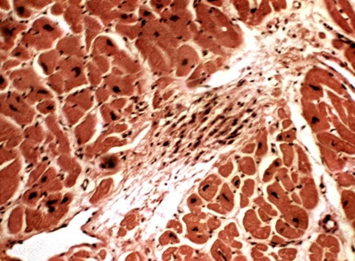 Ревматоидные узелки - что это такое симптомы и лечение