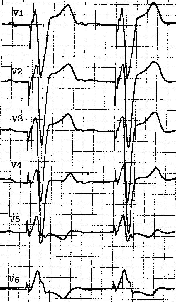 Лабораторные методы диагностирования инфаркта миокарда