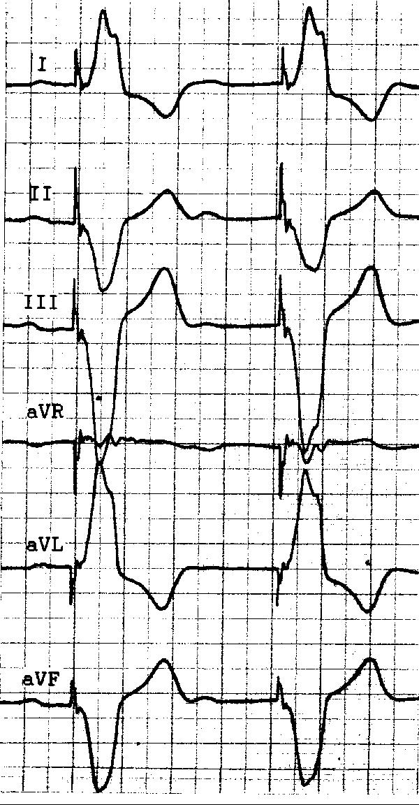 инвазивные методы лечения инфаркта миокарда