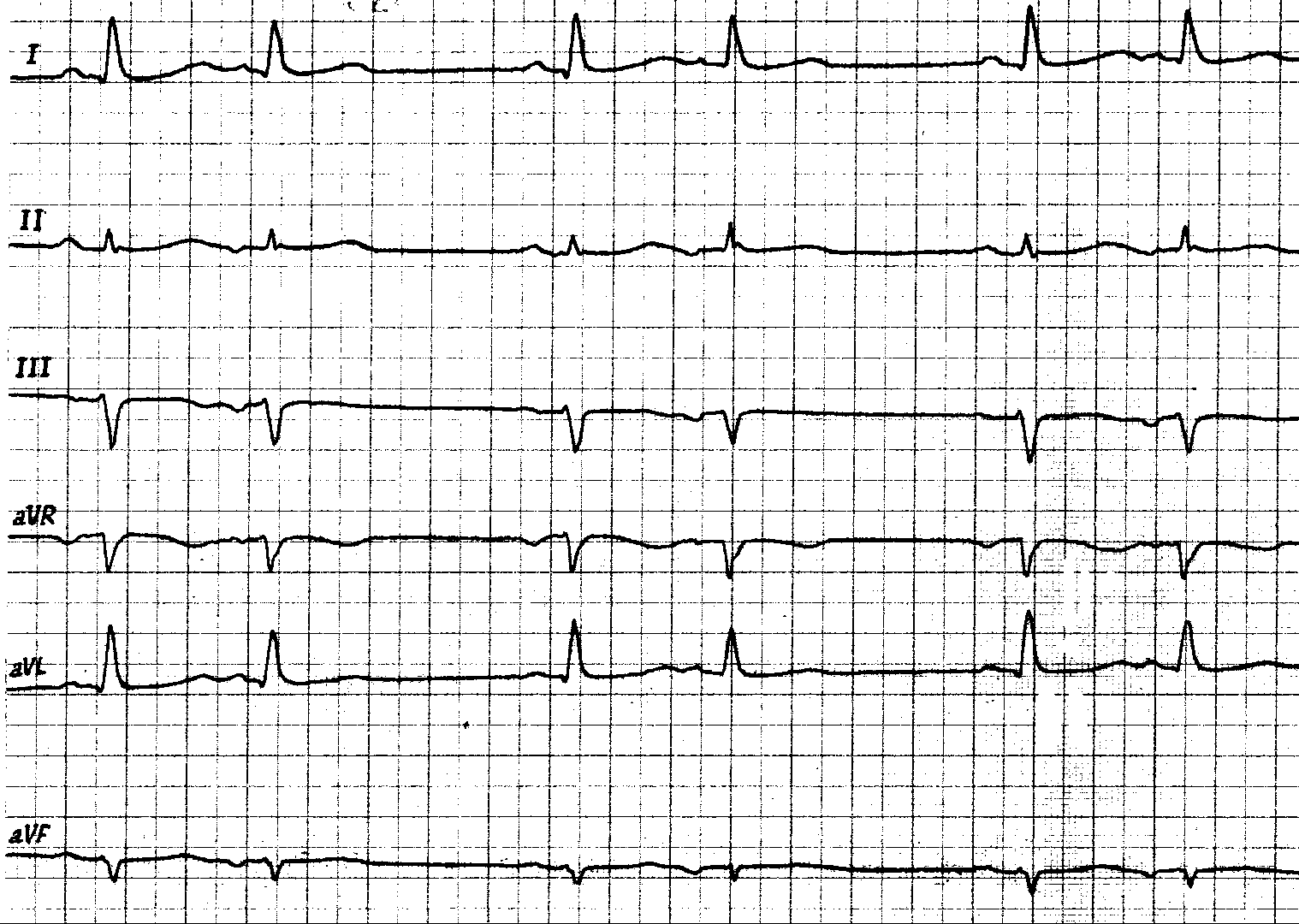 реферат экг диагностика инфаркта миокарда