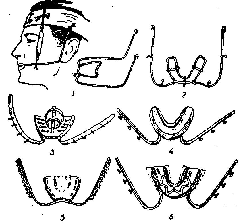 эндопротезов в челюстно лицевой