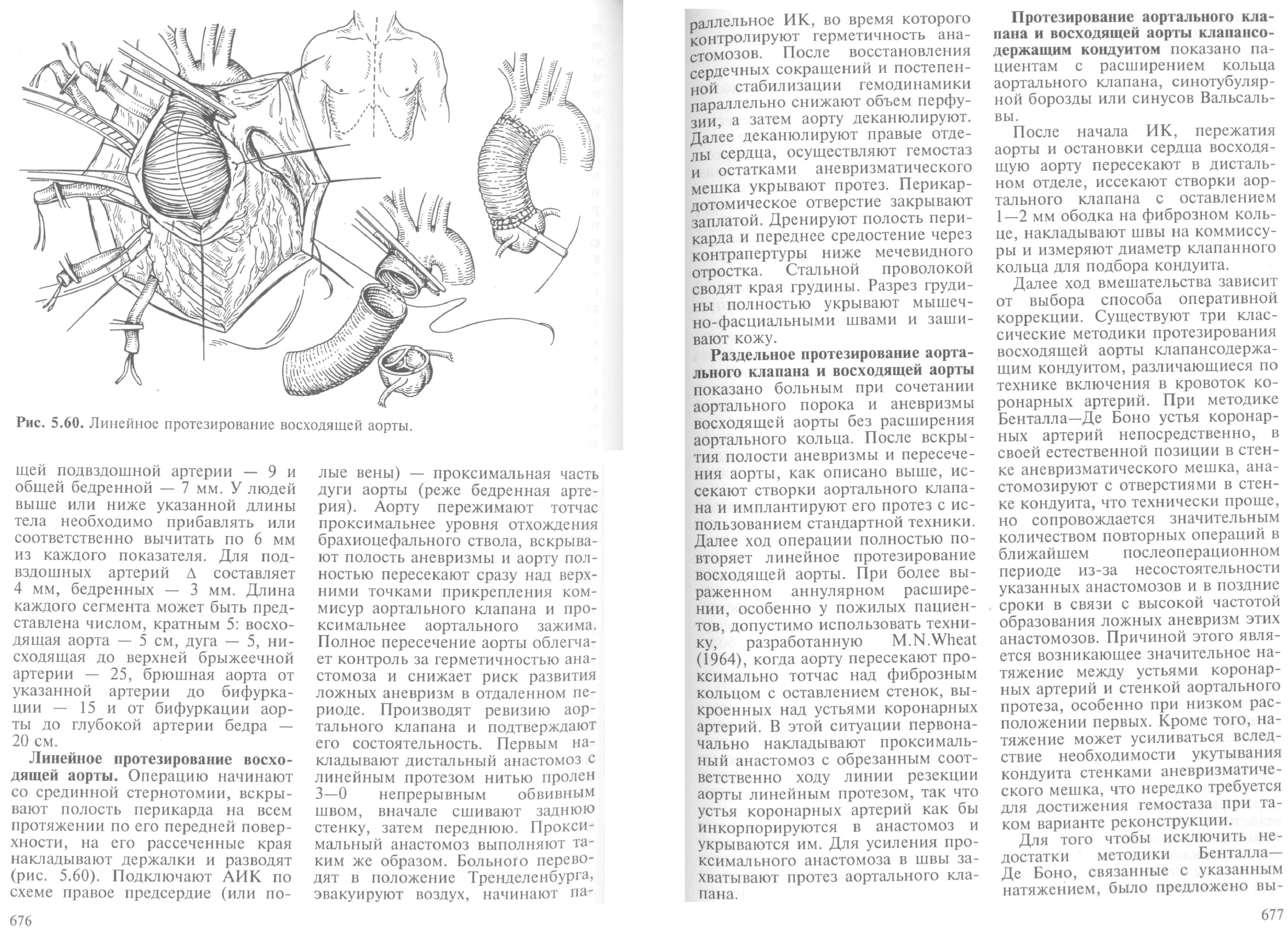 Диагностика  Аневризмы грудной аорты  Клиническая ангиология