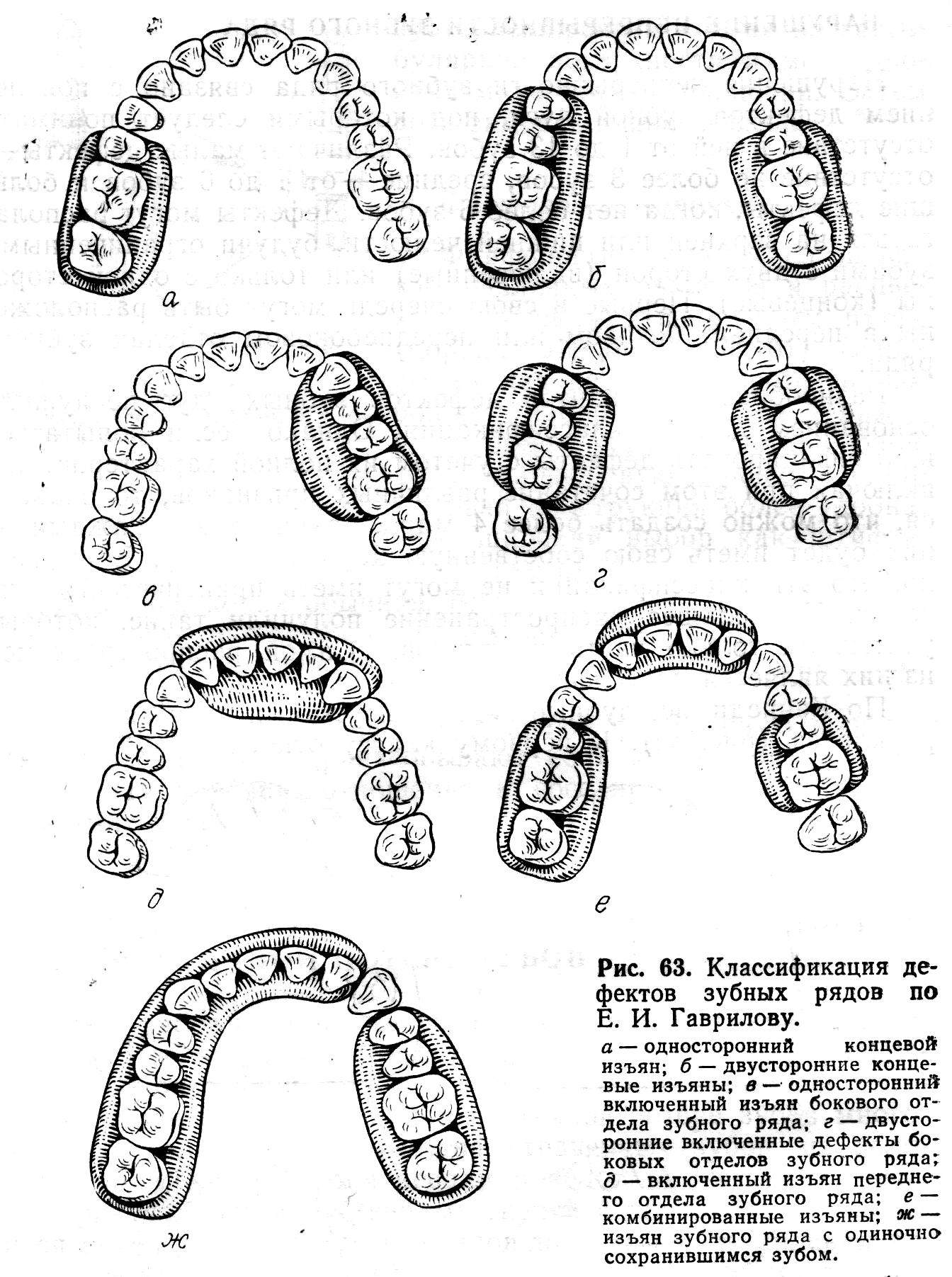 Дефекты зубного ряда реферат 6315