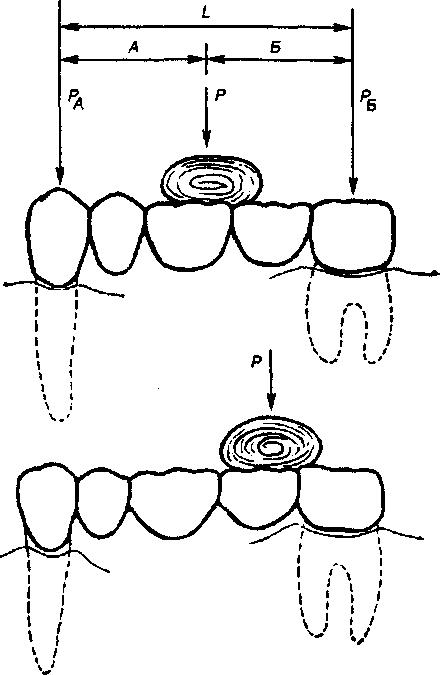 Биомеханика мостовидного протеза реферат 3319
