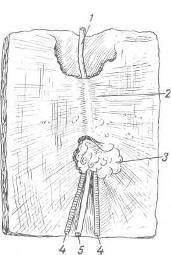 Грыжа мечевидного отростка фото