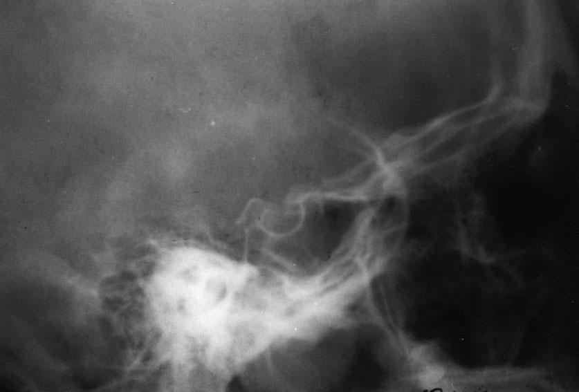 рентген грудной клетки норма при сахарном диабете